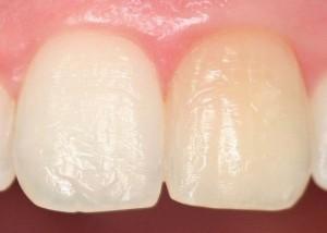 metodos de blanqueamiento dental