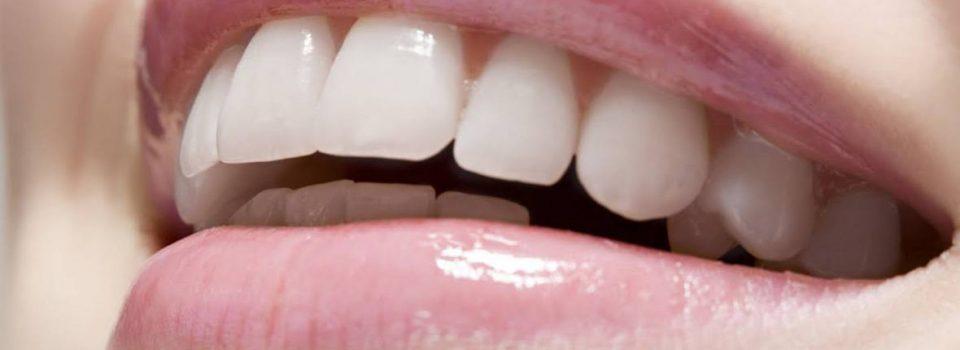 Los mejores tratamientos de estética dental