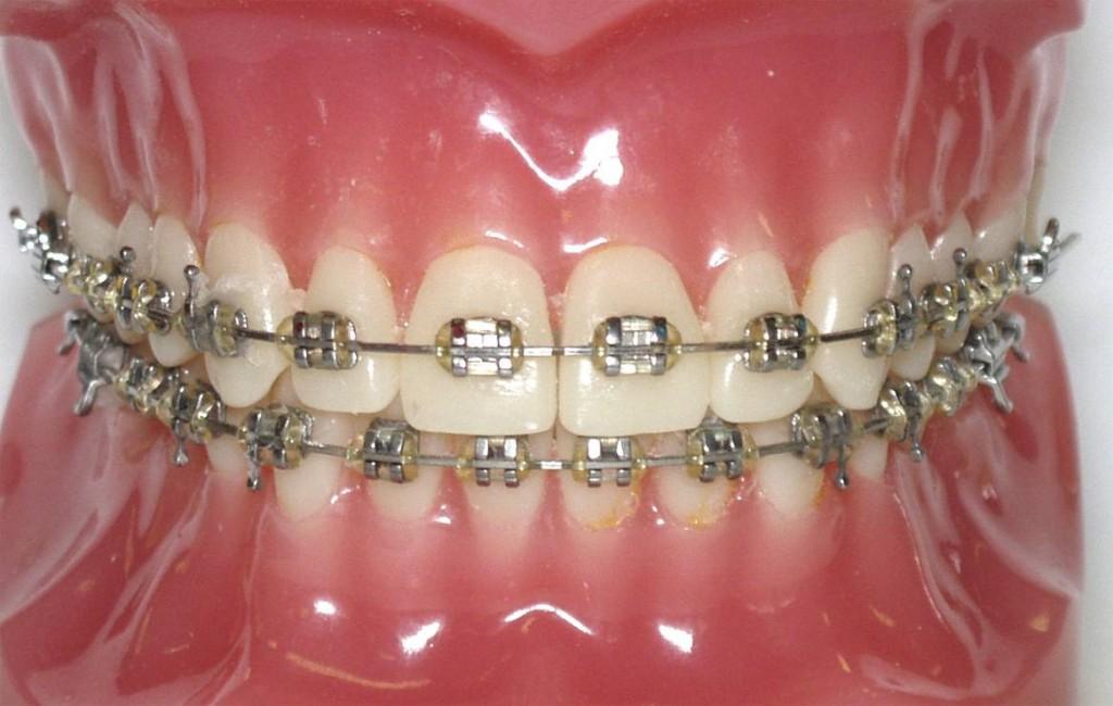 orto-braces