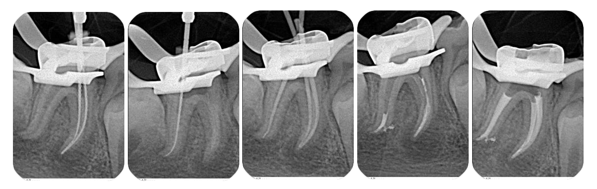 endodoncia dental