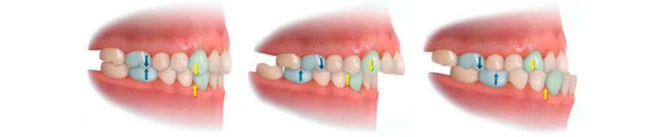 Anomalías dentales