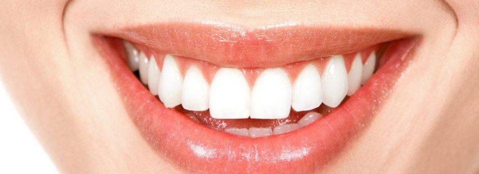 Técnicas de Blanqueamiento dental en españa